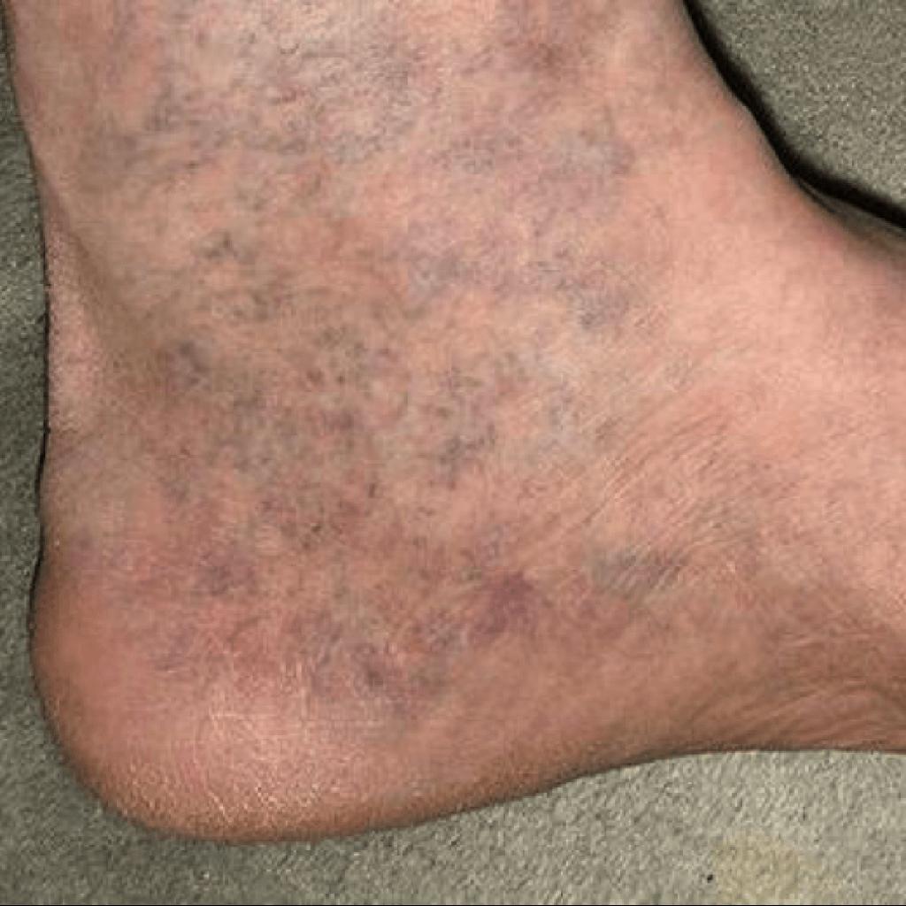 Первые симптомы варикоза