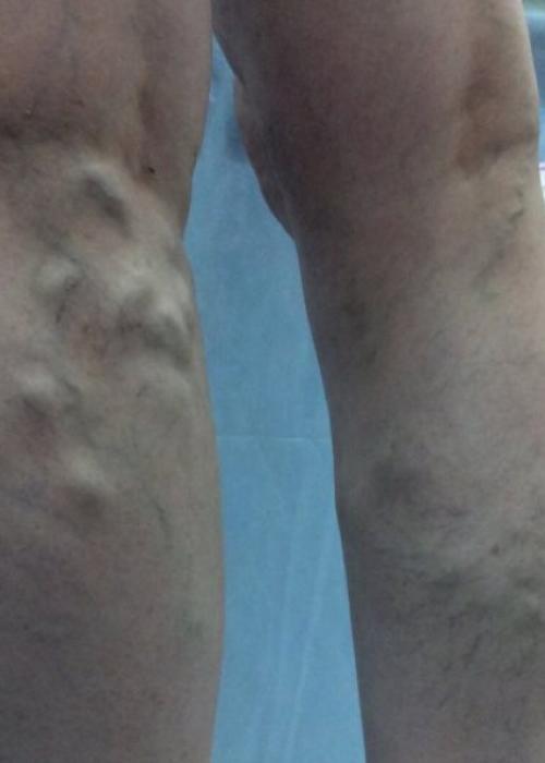 Симптомы варикоза ног