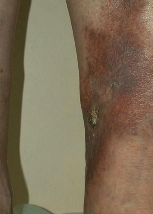 Варикоз вен на ногах: симптомы