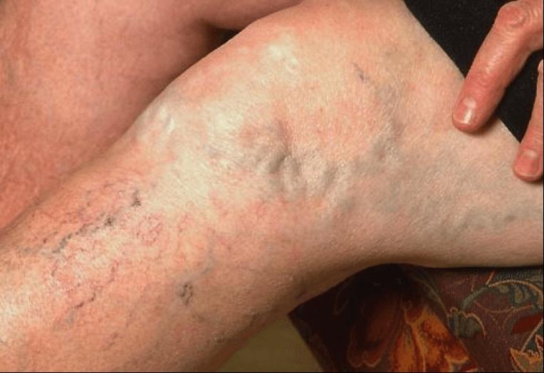 Расширение Подкожной Вены Ноги Варикозное
