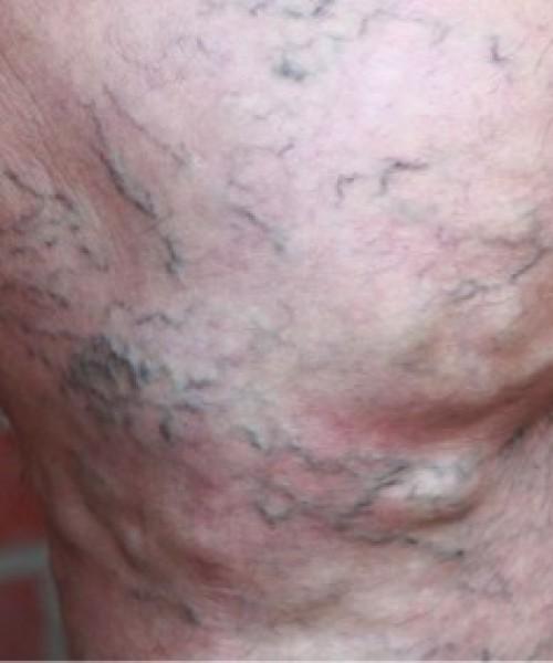 Варикозная болезнь нижних конечностей: симптомы