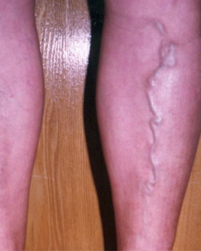 Симптомы варикоза у мужчин