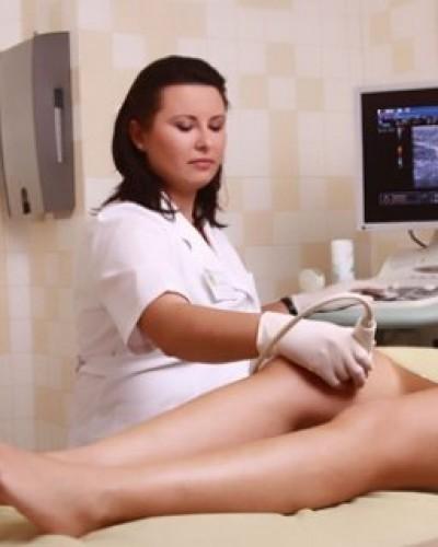 Народные средства методы лечения варикоза