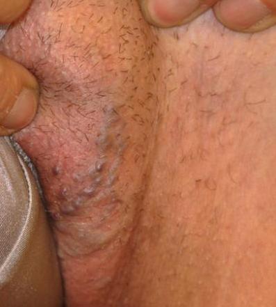 Тазовый варикоз симптомы