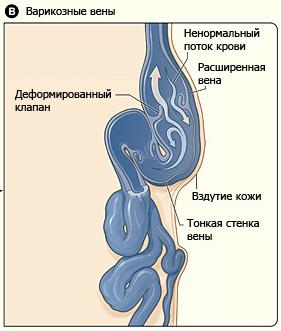 Внутренний варикоз симптомы