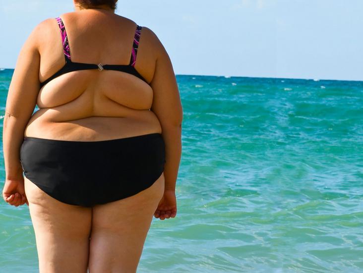 Лишний вес и варикоз