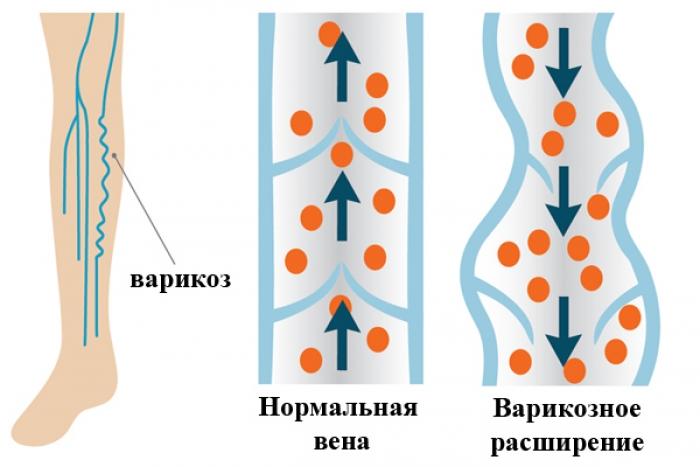 Варикозная болезнь основные причины недуга