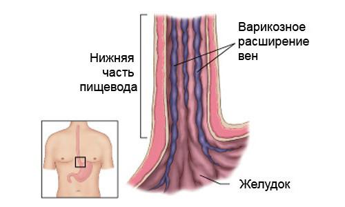 Варикоз желудка: причины