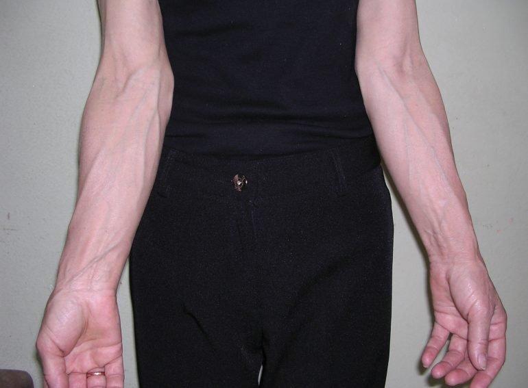 Лечение варикоза на руках