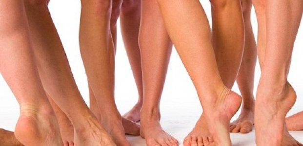 Причины варикоза ног и его устранение