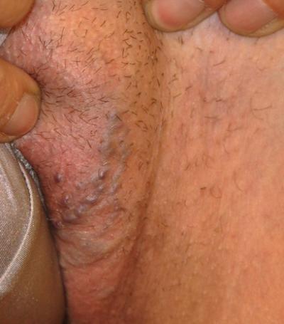 Симптомы варикоза половых органов