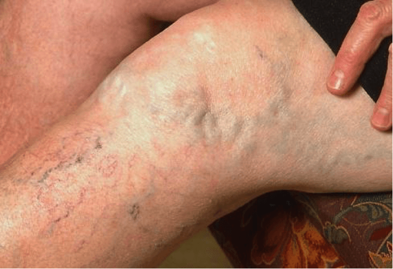 Варикоз вен: симптомы