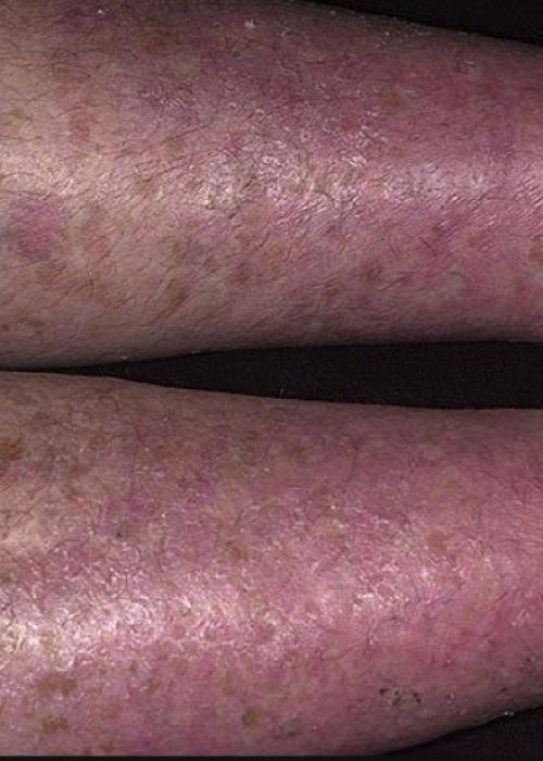 Варикозный дерматит: симптомы