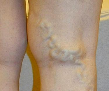 Cимптомы варикоза глубоких вен