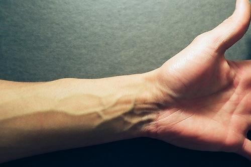 Варикоз на руках симптомы
