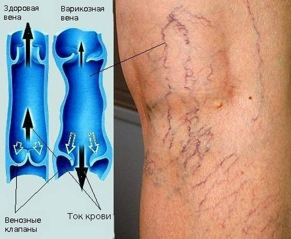 Причина варикоза на ногах у женщин