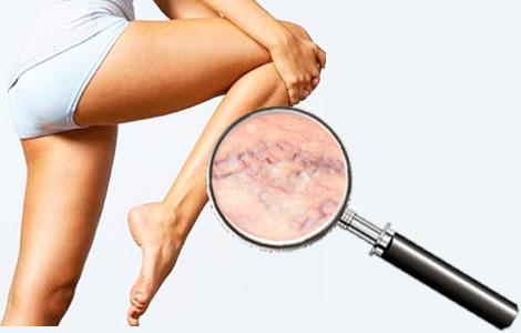 Причина варикоза на ногах