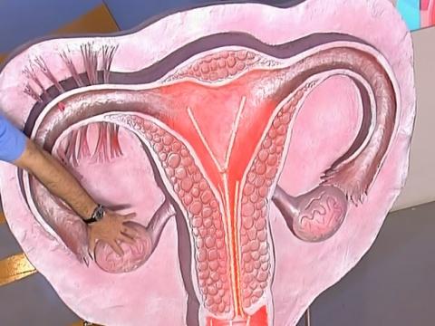 Варикоз матки симптомы